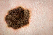 Deadly Skin Cancer More Common in Organ Transplant Recipients: Study