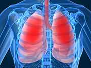 CT Scans for Lung Cancer Turn Up Few False-Positives: Study