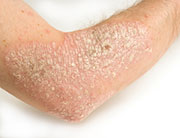 Worse Psoriasis, Less Healthy Arteries, Study Finds