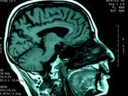 Brain's Signaling Systems Might Determine PTSD Severity: Study