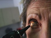 Scientists Spot Three More Genes Linked to Glaucoma Risk