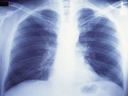 Weight May Influence Outcomes After Lung Cancer Surgery